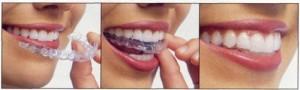 Invisalign Vancouver, invisalign Kitsilano - Dentists Vancouver, Vancouver Dentists