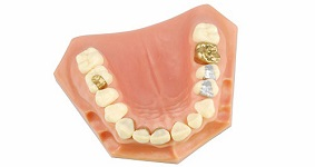 dental filing costs vancouver bc