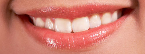 Professional Whitening Vancouver