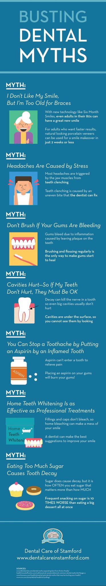 Am I Too Old for Braces - Dental Myths