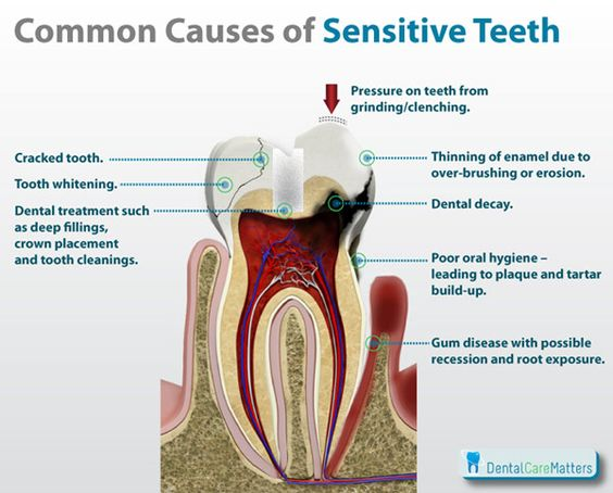 Sensitive Teeth - Common Causes of Sensitive Teeth