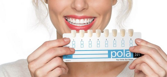 Teeth Whitening Cost Vancouver Bc Kitsilano Family Dental